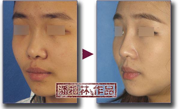 手术方案:单纯硅胶假体隆鼻背
