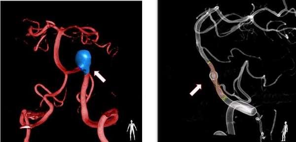 一、什么是脑血管造影?   脑血管造影是用针在大腿根部刺一个小孔,从股动脉插入一根导管,经腹、胸、颈部大血管,将碘造影剂注入动脉,使血管显影,然后快速连续摄片,对脑血管状况全面了解的一种诊断方法。     正常脑血管造影正位像; 正常脑血管造影侧位像   二、为什么要做脑血管造影?   无论出血性或闭塞性脑卒中,实施最有效处理的基础是搞清楚发病的根本原因。因为任何盲目的治疗都有可能加重患者的病情或丧失最佳的治疗时机。而全面的脑血管造影就是明确诊断的最佳选择,它不仅提供直观的颈部和脑血管实时影像,而且可