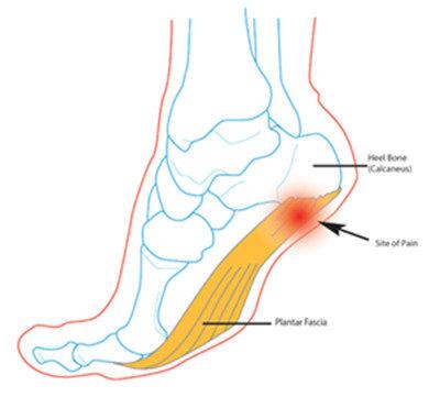 跖筋膜结构图
