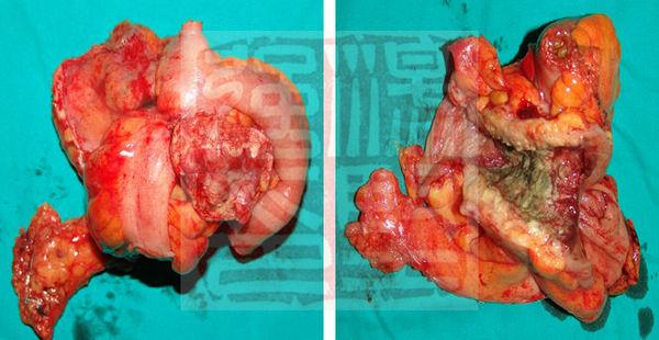 高难度腹腔镜手术2-巨大乙状结肠癌侵及膀胱,回肠的腹腔镜切.