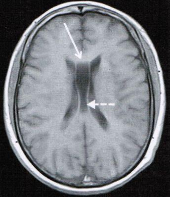 医生文章 详情    第五脑室:透明隔是两侧侧脑室中间的间隔,在胎儿四