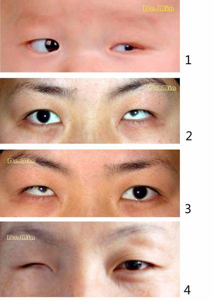 这种情况与后天眼球摘除手术后呈现的眼窝凹陷有着明显不同.