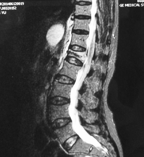 男性手术都有什么微创_女性疝气微创手术_压缩性骨折微创手术后遗症