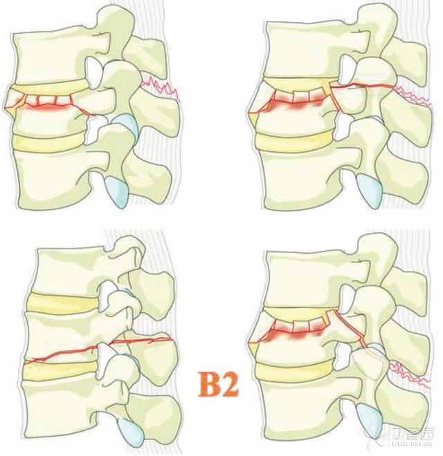 b2亚型-后部张力带损伤:后部张力带骨性和或韧带结构