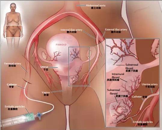 卵巢子宫结构图片