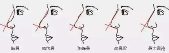 完美的鼻形是怎样滴你知道吗