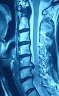 颈椎间盘突出显微如何手术治疗