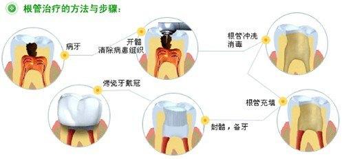 根管治疗术的基本步骤:治疗前准备,开髓,根管预备,根管冲洗,根管