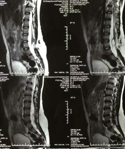使圆锥位置低于正常水平,脊髓圆锥和马尾神经就会受到损害并产生一