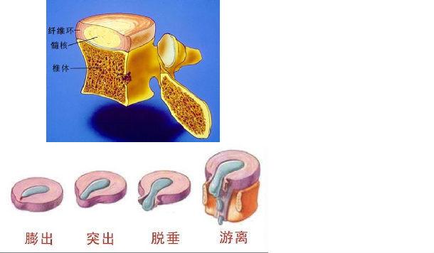 腰椎间盘位于两个椎体之间,由髓核、纤维环和软骨板三部分构成(如下图示意),其中髓核为中央部分,纤维环为周围部分,包绕髓核,软骨板为上、下部分,分别与上下的椎体骨组织相连。其中纤维环紧密分层排列,包围髓核,若因为长期姿势不当或外部冲击造成纤维环松动、破裂,髓核就可能向后突出或脱出,顶压神经,这就成为通常所说的腰椎间盘突出症。    当患者保守治疗无效需要手术时,大部分的患者可选择椎间孔镜手术(大部分可局麻、侧方入路,创伤更小),对不适合椎间孔镜手术者,可选择微创椎间盘镜手术(MED)手术。   对行ME