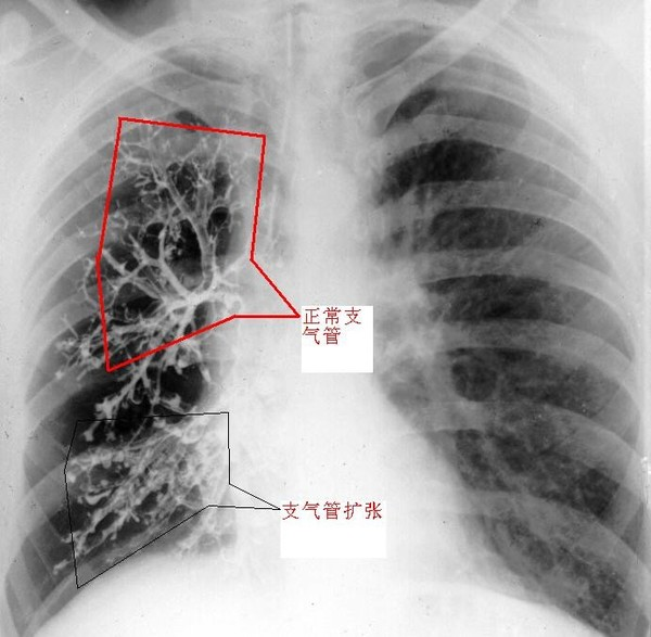 支气管共有27级,其主要的任务是把外界中的空气输送到肺泡,空气中的氧气再经过肺泡壁进入到血液循环,而血液中的二氧化碳气体经过肺泡壁进入肺泡,再沿着支气管输送到出体外。因此,可以把支气管比喻成人体的烟筒,机体代谢需要的氧气和代谢产生的二氧化碳气体都要通过这个烟筒运输。有生活常识的人都知道,烟筒不通畅,炉子的火就不旺盛,甚至熄灭。如果人体的烟筒----支气管不通畅了,机体就会出现缺氧和二氧化碳潴留,患者出现胸闷、气急、心慌、咳嗽、紫绀等临床表现。 支气管扩张症就是支气管结构发生了异常的扩张,就是人
