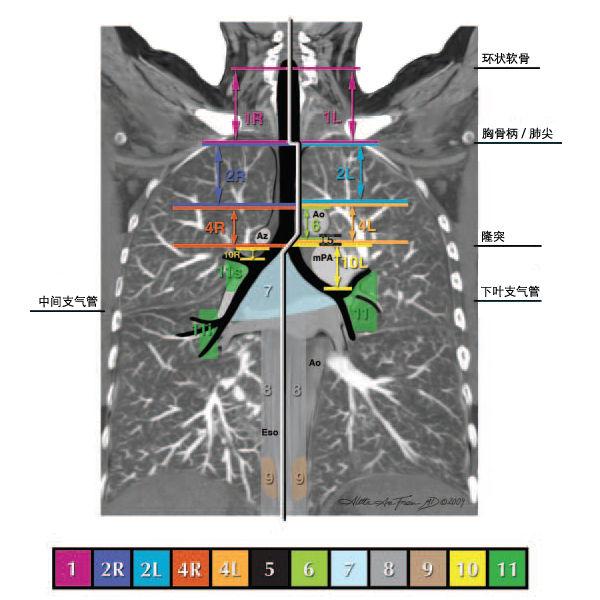 纵隔淋巴结分区图谱 美国胸科协会