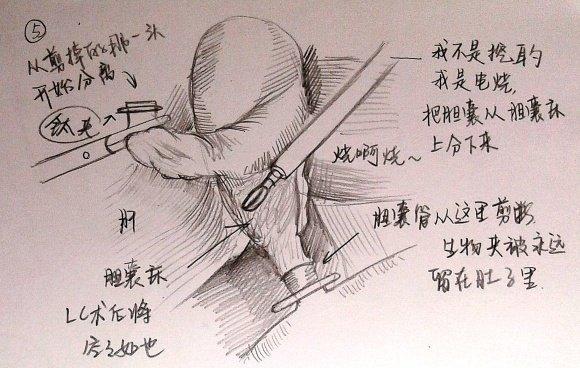 腹腔镜胆囊切除术的操作步骤及注意事项