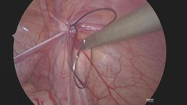 宝宝鞘膜积液会复发吗