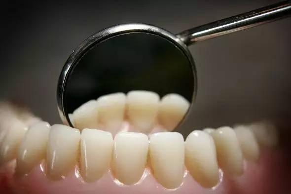 moteur endodontie