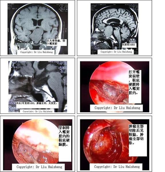 肿瘤侵入蝶窦腔,切除肿瘤后清晰显示鞍膈及其周围结构.