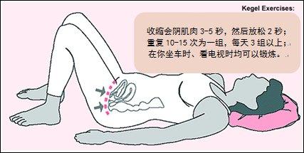 盆底功能锻炼步骤图