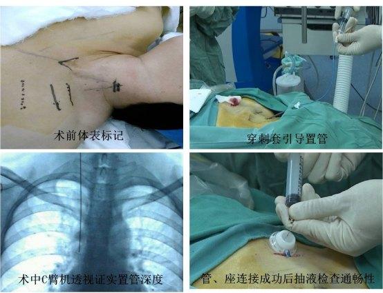 静脉输液港植入术方便乳癌病人化疗