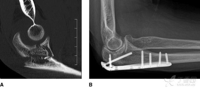 尺骨近端骨折的治疗 转载