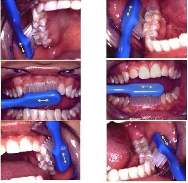 成人使用的正确刷牙方法――巴氏刷牙法