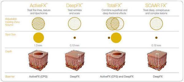 微点阵结构材料