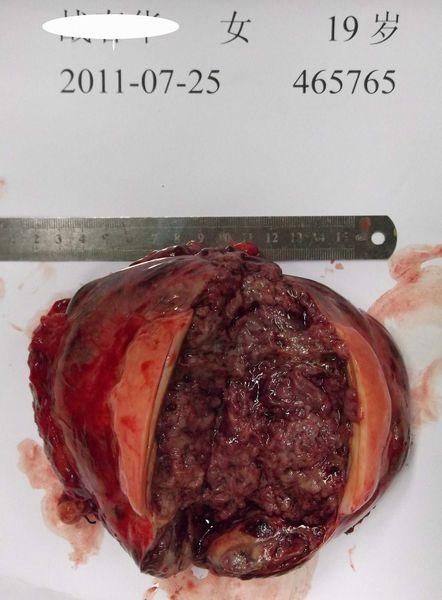 胰腺实性假乳头状瘤6例报告