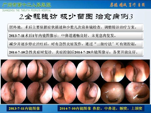 鼻窦炎怎么治_难治性鼻-鼻窦炎可治愈性临床观察