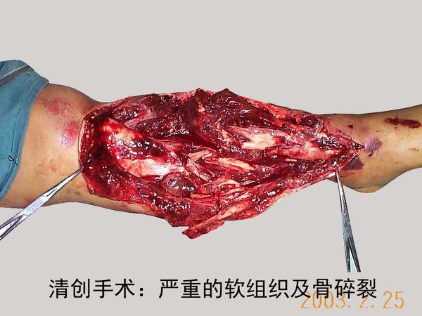 游离腓骨皮瓣治疗小腿骨缺损