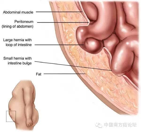 胃肠解剖结构图