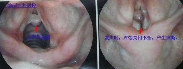 喉咙声带结构图