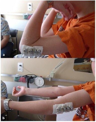 肘关节功能锻炼方法