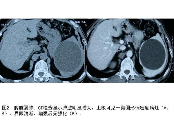 脾脏肿瘤的发病率较低,属于临床罕少见疾病。自Rokitansky等于1861年首次描述脾脏错构瘤以来,国内外文献陆续后零星的个案或小数量病例报道。因脾脏肿瘤无特异性的临床表现,易于延误诊治,但随着医学影像学技术的不断发展,脾脏肿瘤的诊断准确率不断提高。   (一)主诉发现脾脏占位性病变1周。   (二)病史患者女,54岁,1周前查体超声发现脾脏占位性病变,无任何不适症状。   (三)体格检查无任何阳性体征。   (四)辅助检查腹部MRI和增强CT检查均考虑脾脏血管瘤可能。     (五)治疗经过入院