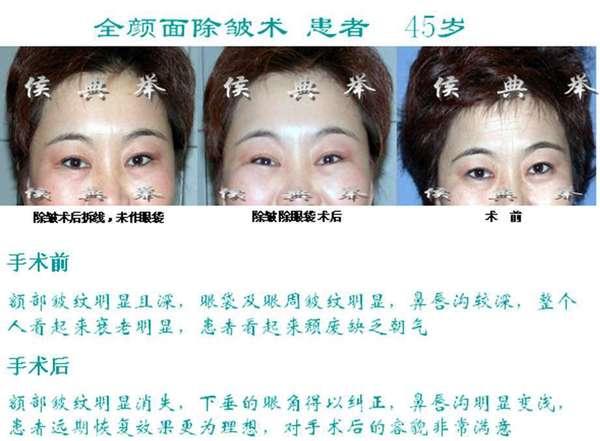 面部微整形除皱什么手术方法持久