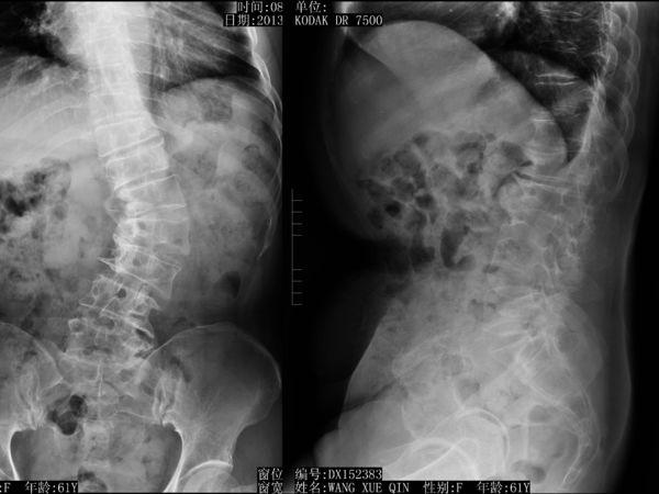 图片1:术前腰椎片示:脊柱侧弯、旋转,正位棘突不正,侧位椎间隙