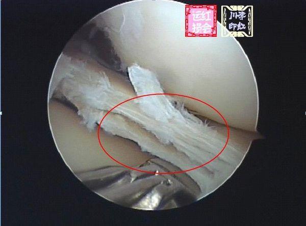 半月板损伤的治疗方法