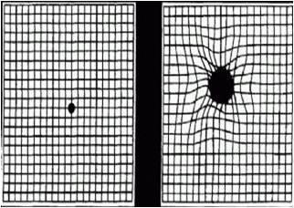 检查/视力检查:应用特殊视力表