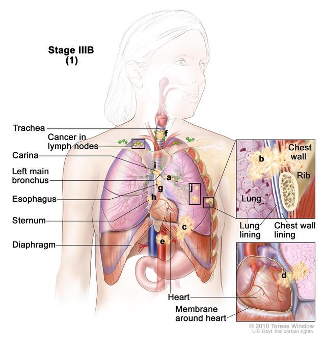 肿瘤扩散到原发灶同侧锁 骨上淋巴结或对侧锁骨上淋巴结:任何大小肿瘤;部分肺(隆凸)或全肺不张或炎症性肺炎;任何肺叶内可有一个或多个肿瘤孤立灶;肿瘤可能侵犯到以下任何结构: 主支气管;胸壁;膈肌或膈神经;脏胸膜或壁胸膜;心脏或心包; 沿向或发自心脏的大血管;气管;食管;喉返神经;胸骨或胸椎;隆凸。