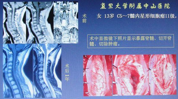 脊髓圆锥正常位置