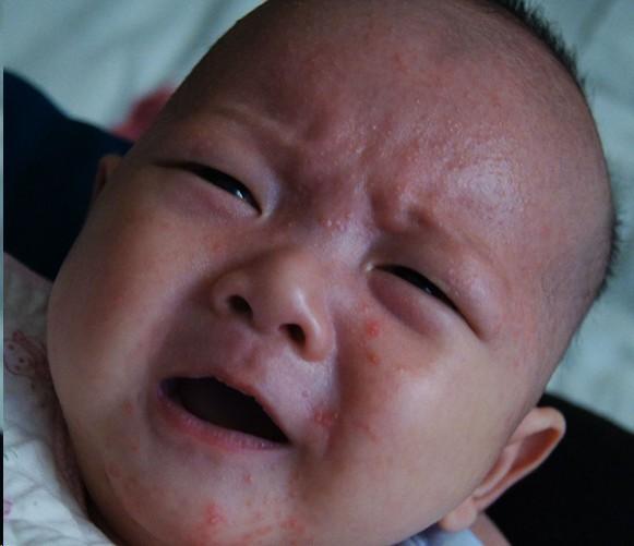 对于婴儿来说,较常引起过敏的食物包括牛奶,鸡蛋,花生,大豆,麦子,海鲜