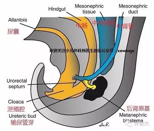 上图:左肾是重复肾重复输尿管畸形.