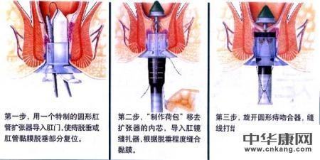 常用到的手術方式:血栓性外痔剝離術,傳統痔切除術(外剝內扎術),痔環