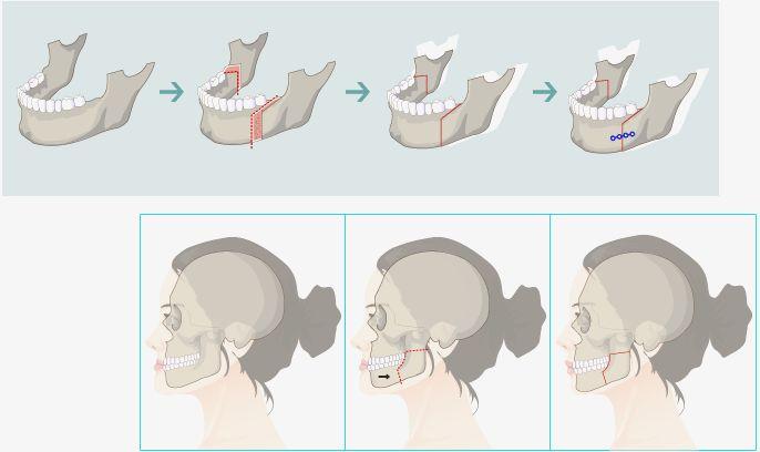 儿童带反颌矫治器图片