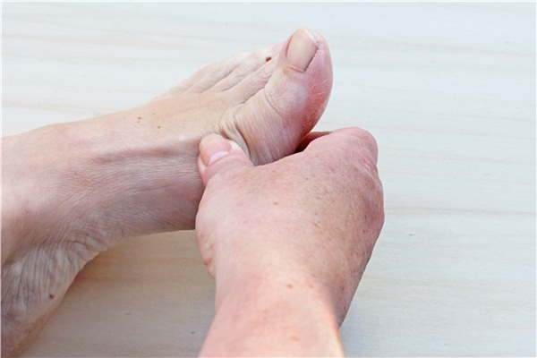 足癣又称脚癣或香港脚,是发生于脚掌、跖与趾间皮肤的浅部真菌感染,其传播方式主要有两种:一是直接接触足癣患者;二是使用足癣者的鞋袜、日常用品。   一、诱发足癣的因素:   1、多汗者   足跖部多汗,由于汗液蒸发不畅,皮肤表皮而呈白色浸渍状,尤以趾间最明显,严重多汗者可起水疱,或角化过度,易继发真菌感染而致足癖。   2、妊娠期   内分泌失调,使皮肤抵抗真菌的能力降低。   3、肥胖者   指(趾)间间隙变窄,十分潮湿,易诱发间擦型脚癖。   4、足部皮肤损伤   破坏了皮肤的防御屏障,真菌易于侵入