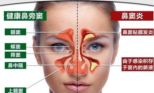 鼻窦的作用有哪些